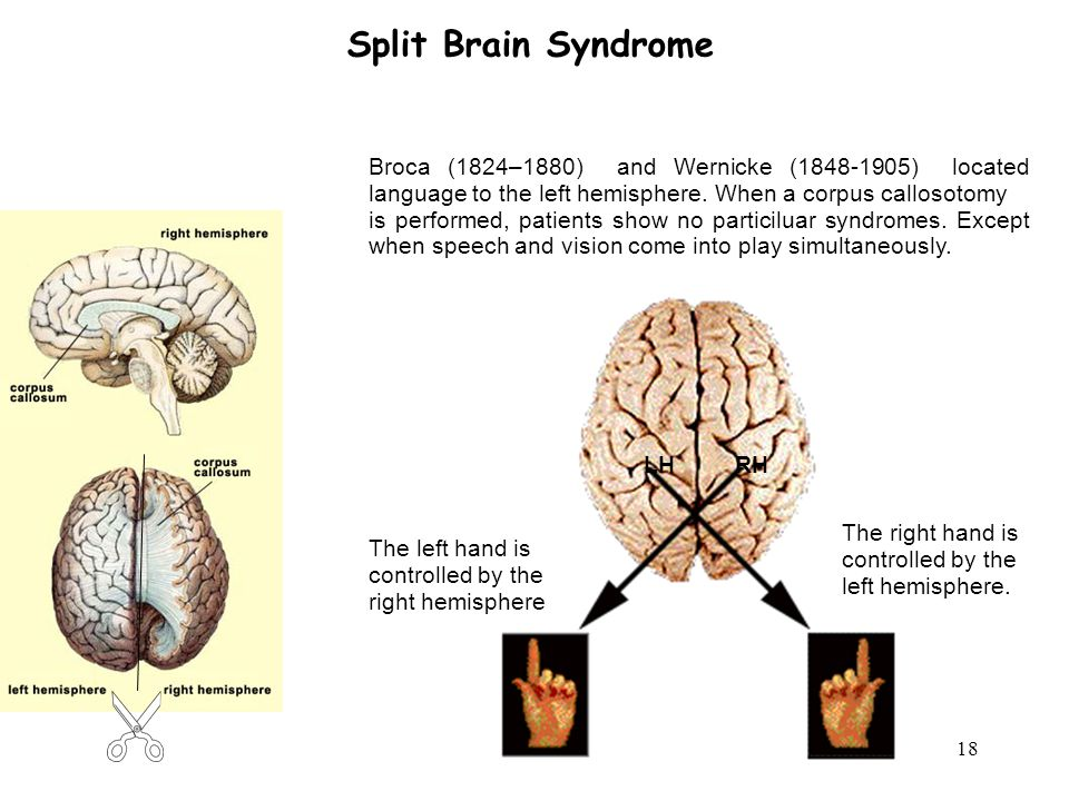 18 Split Brain Syndrome Broca (1824–1880) and Wernicke (1848-1905) located language to the left hemisphere.