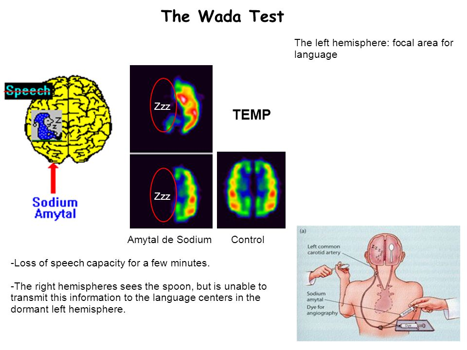 19 The Wada Test The left hemisphere: focal area for language TEMP Zzz Amytal de SodiumControl -Loss of speech capacity for a few minutes.