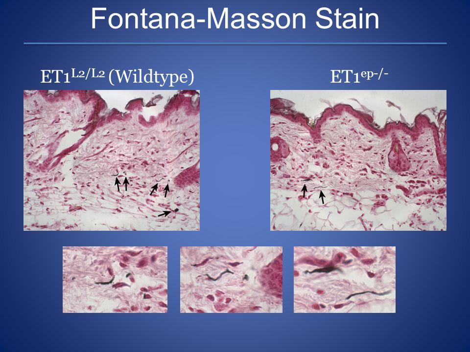Fontana-Masson Stain ET1 L2/L2 (Wildtype)ET1 ep-/-