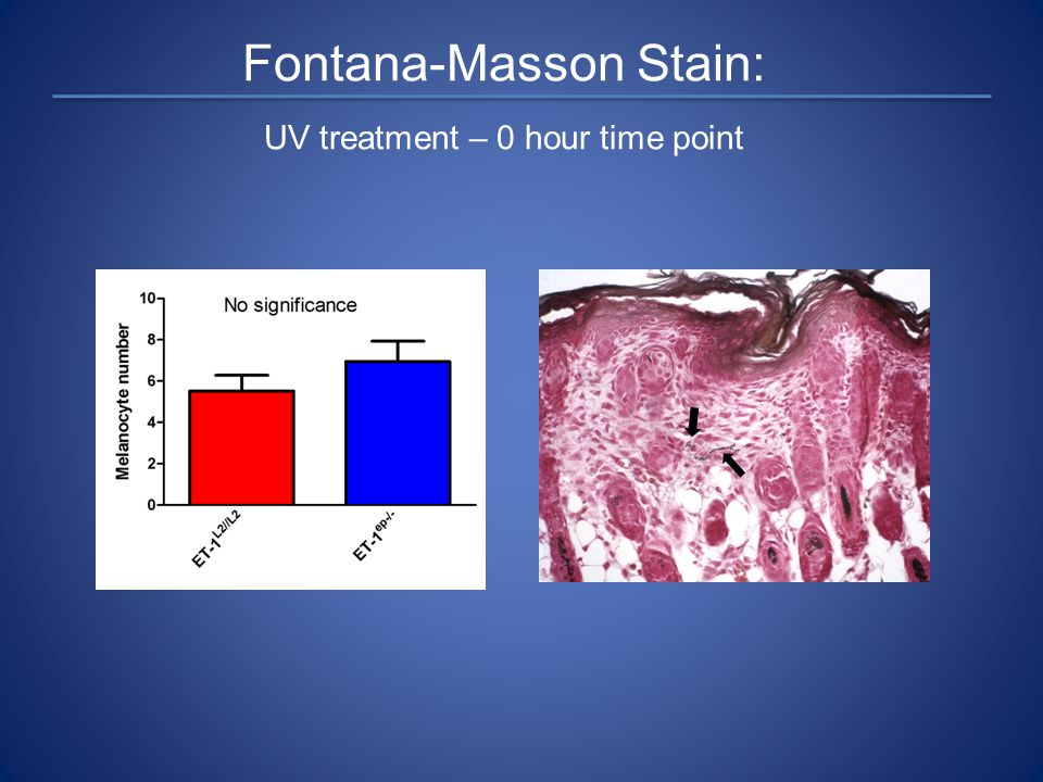 Fontana-Masson Stain: UV treatment – 0 hour time point