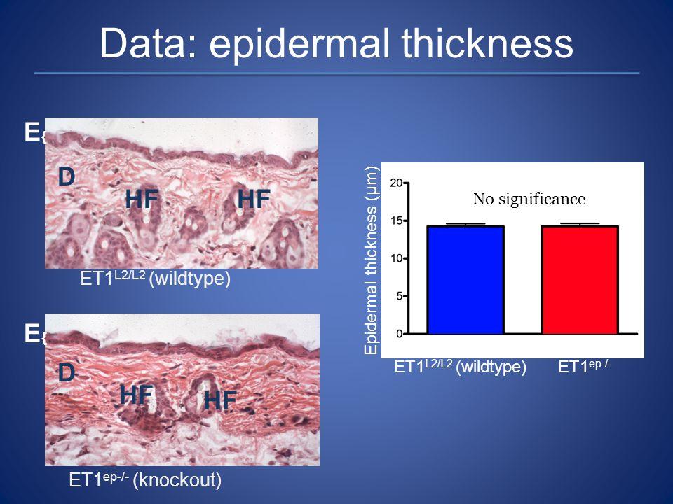 HF D E{E{ D E{E{ Data: epidermal thickness ET1 L2/L2 (wildtype) ET1 ep-/- (knockout) ET1 L2/L2 (wildtype)ET1 ep-/- Epidermal thickness (µm) No signifi