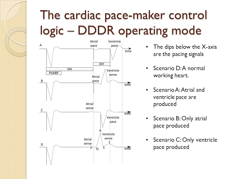 The cardiac pace-maker control logic – DDDR operating mode The dips below the X-axis are the pacing signals Scenario D: A normal working heart.
