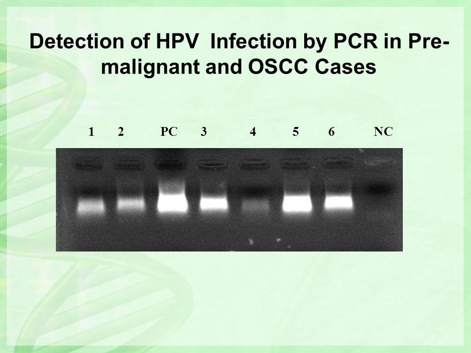 Detection of HPV Infection by PCR in Pre- malignant and OSCC Cases 1 2 PC 3 4 5 6 NC