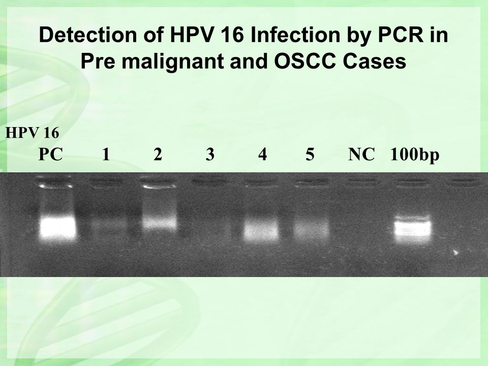 HPV 16 PC 1 2 3 4 5 NC 100bp Detection of HPV 16 Infection by PCR in Pre malignant and OSCC Cases