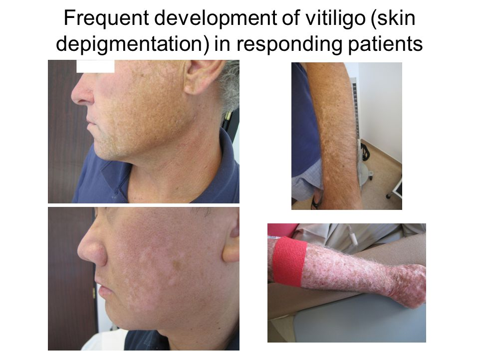 PD-1 blockade improving other skin conditions BeforeAfter