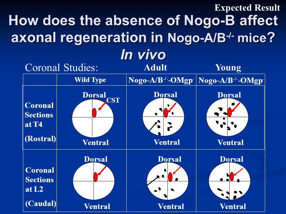 How does the absence of Nogo-B affect axonal regeneration in Nogo-A/B -/- mice .