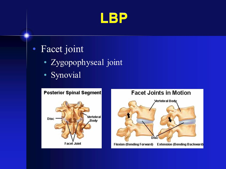 LBP Sacroiliac Joint Tight, Synovial Ligaments SI Dysfunction