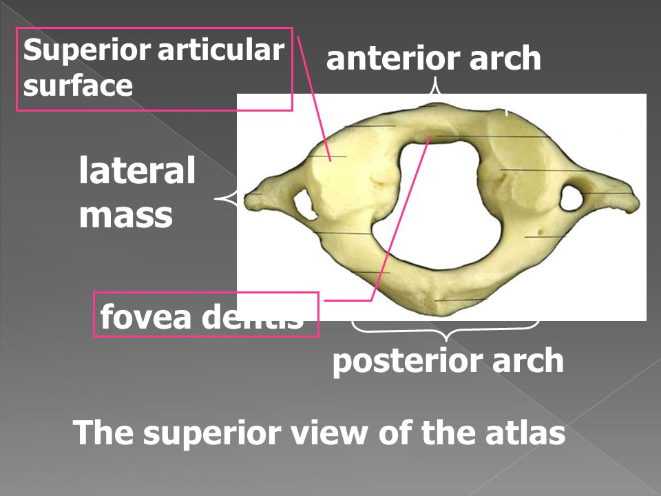 The superior view of the atlas anterior arch posterior arch lateral mass fovea dentis Superior articular surface