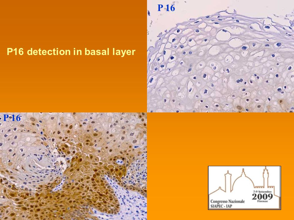 P 16 P16 detection in basal layer