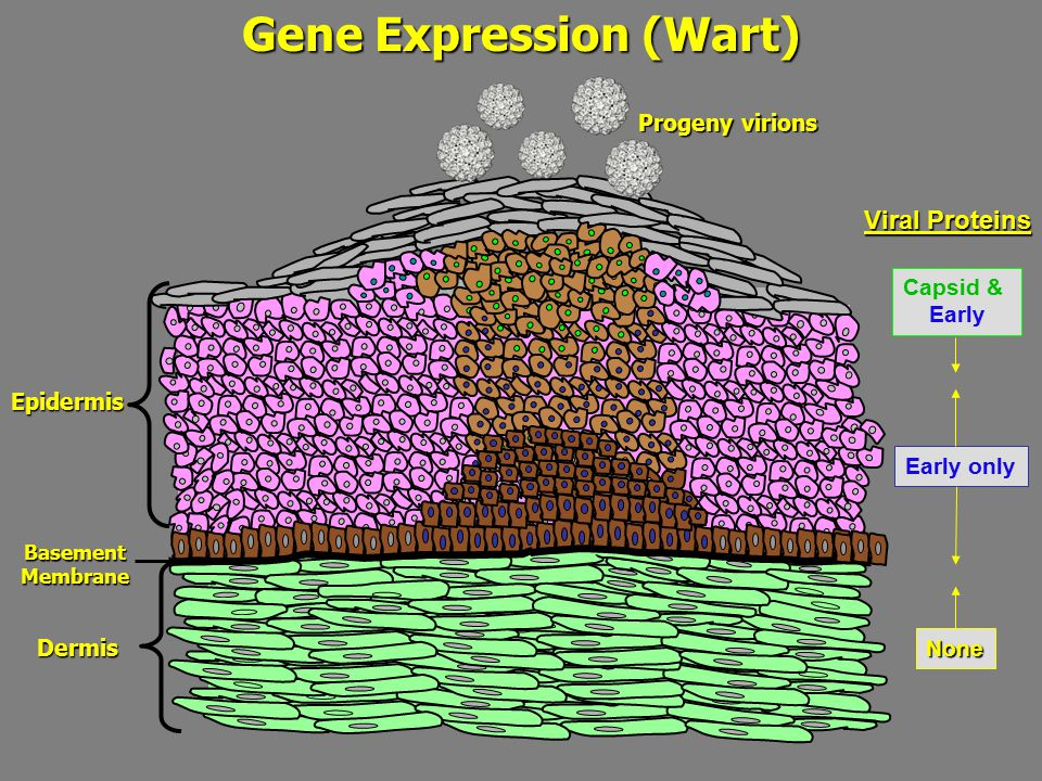 Gene Expression (Wart) BasementMembrane Epidermis Dermis Viral Proteins Early only Capsid & Early None Progeny virions