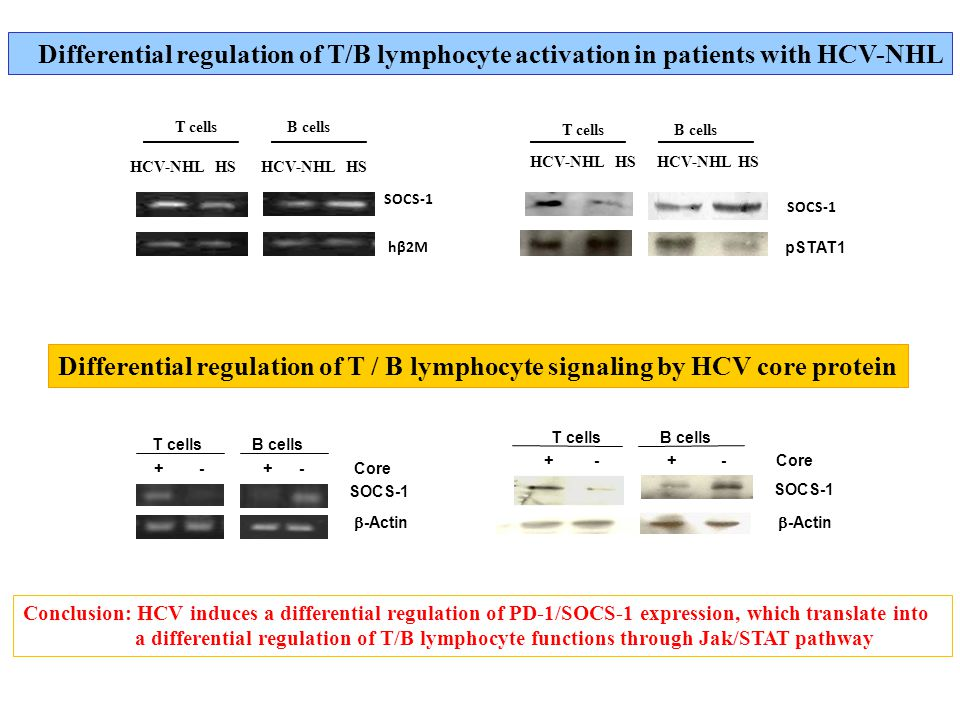 Conclusion: HCV induces a differential regulation of PD-1/SOCS-1 expression, which translate into a differential regulation of T/B lymphocyte functions through Jak/STAT pathway Core T cells B cells SOCS-1  -Actin Core T cells B cells SOCS-1  -Actin Differential regulation of T / B lymphocyte signaling by HCV core protein HCV-NHL HS ____________ T cells B cells SOCS-1 hβ2M T cells B cells ____________ HCV-NHL HS SOCS-1 Differential regulation of T/B lymphocyte activation in patients with HCV-NHL pSTAT1