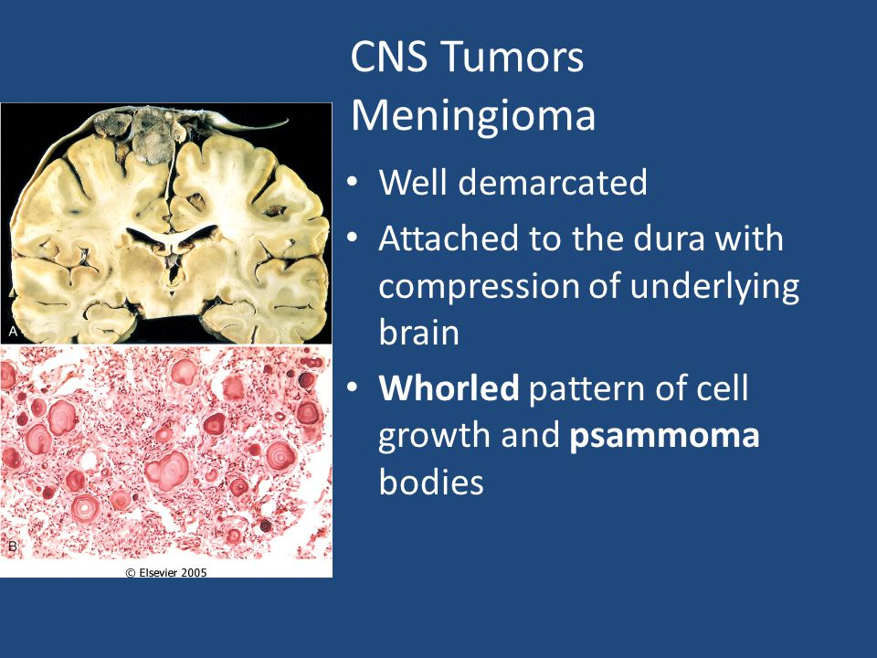 CNS Tumors Meningioma Well demarcated Attached to the dura with compression of underlying brain Whorled pattern of cell growth and psammoma bodies