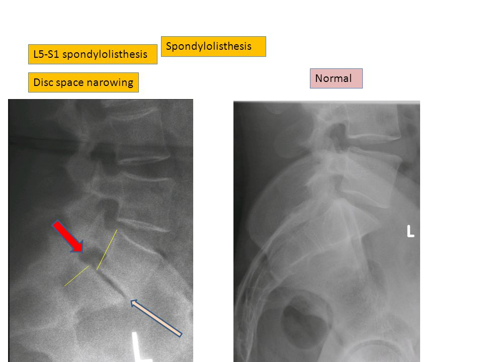Spondylolisthesis L5-S1 spondylolisthesis Normal Disc space narowing
