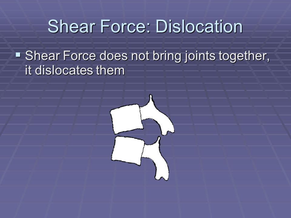 Shear Force: Dislocation  Shear Force does not bring joints together, it dislocates them