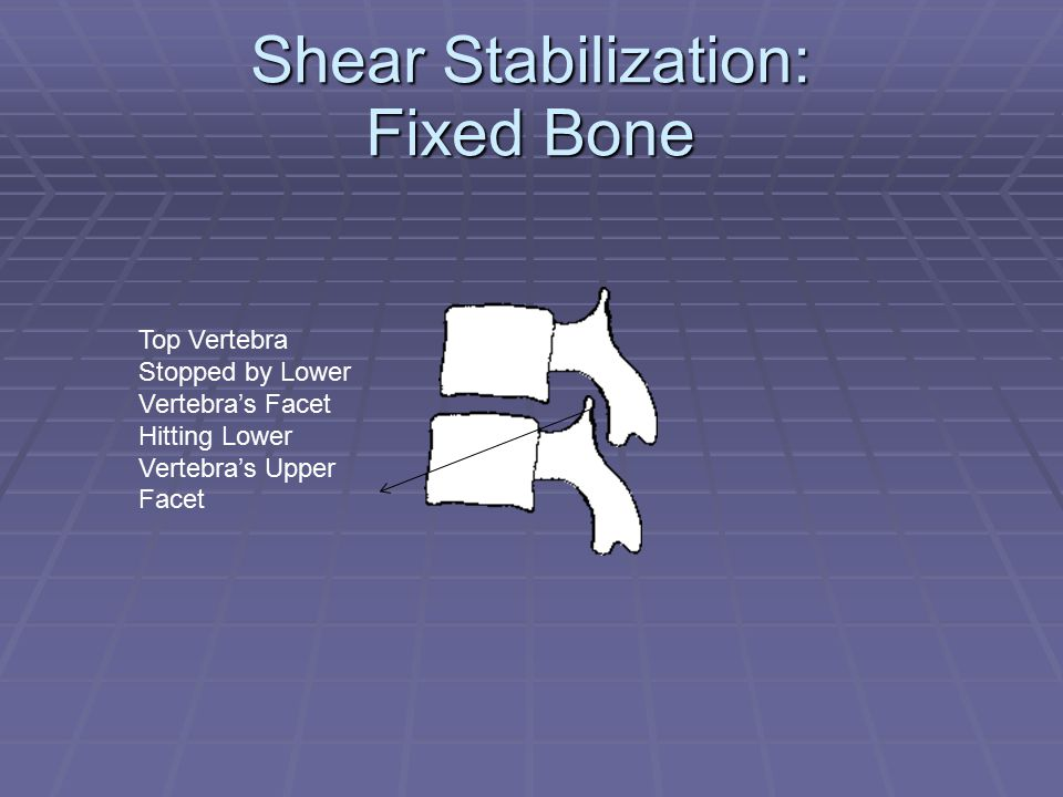 Shear Stabilization: Fixed Bone Top Vertebra Stopped by Lower Vertebra's Facet Hitting Lower Vertebra's Upper Facet