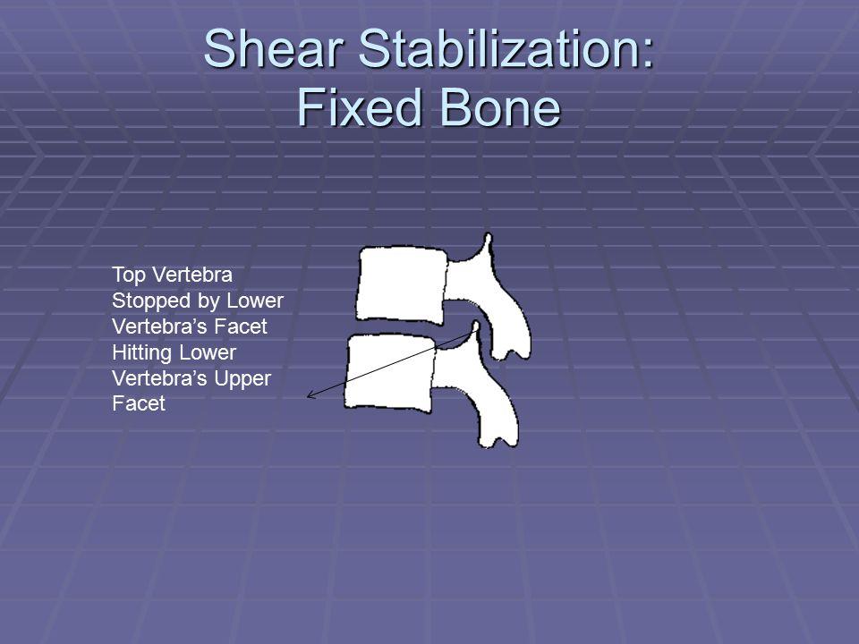 Shear Stabilization: Fixed Bone Top Vertebra Stopped by Lower Vertebra's Facet Hitting Lower Vertebra's Upper Facet