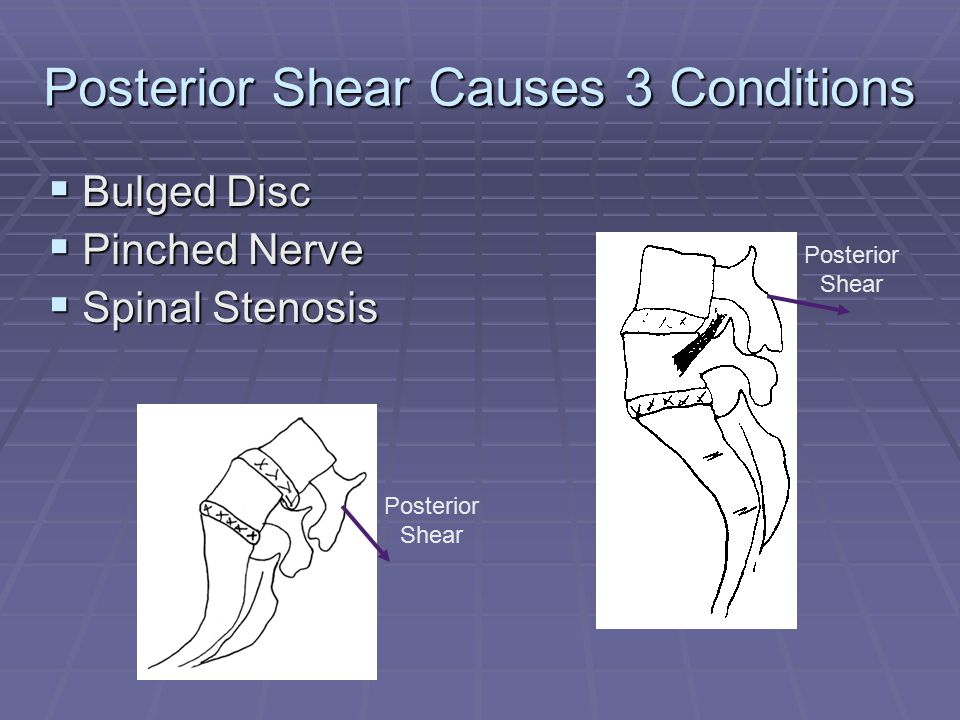 Posterior Shear Causes 3 Conditions  Bulged Disc  Pinched Nerve  Spinal Stenosis Posterior Shear