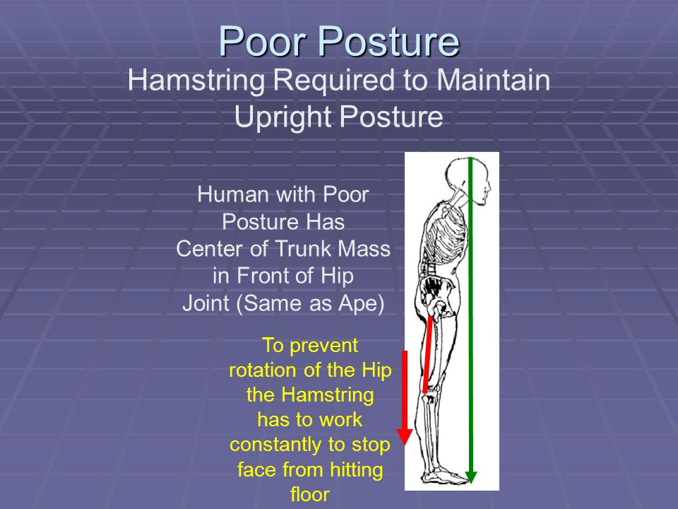 Poor Posture Hamstring Required to Maintain Upright Posture Human with Poor Posture Has Center of Trunk Mass in Front of Hip Joint (Same as Ape) To pr