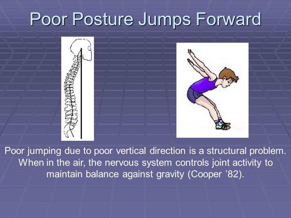 Poor Posture Jumps Forward Poor jumping due to poor vertical direction is a structural problem.