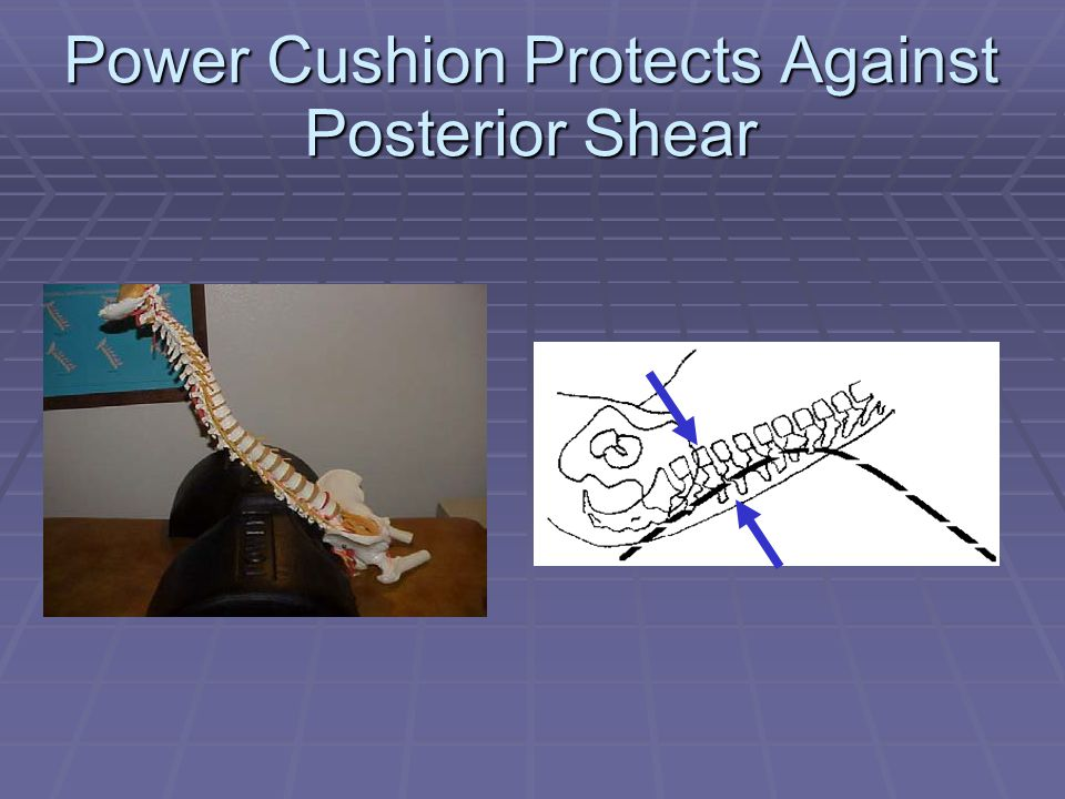 Power Cushion Protects Against Posterior Shear