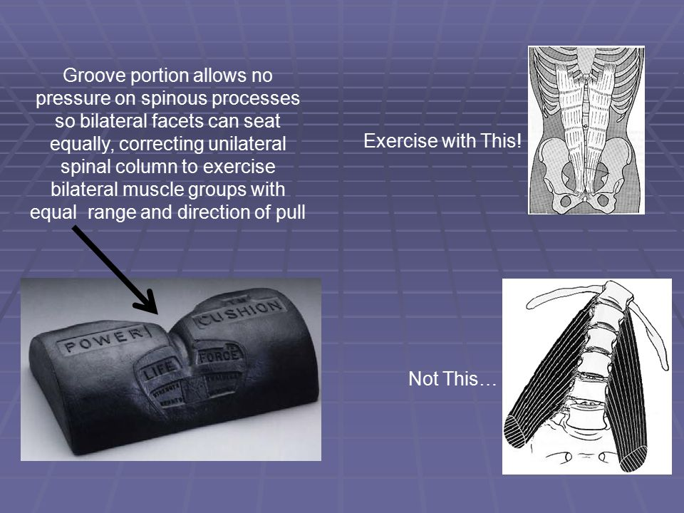 Groove portion allows no pressure on spinous processes so bilateral facets can seat equally, correcting unilateral spinal column to exercise bilateral muscle groups with equal range and direction of pull Exercise with This.
