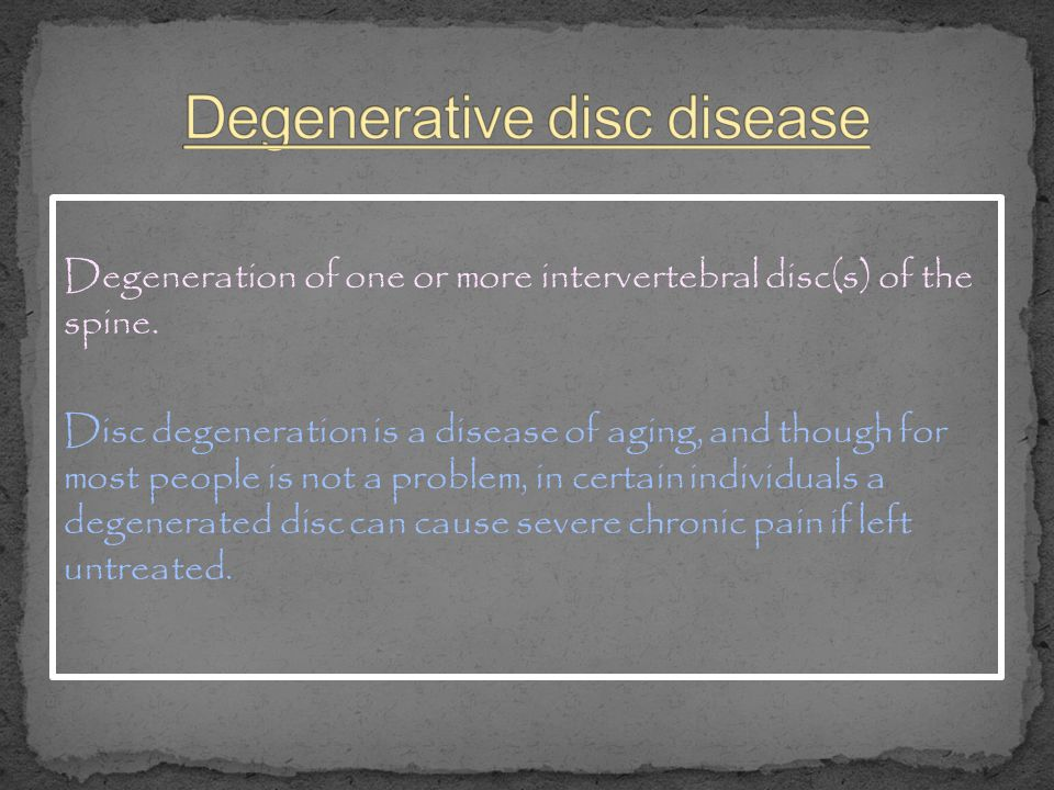 Degeneration of one or more intervertebral disc(s) of the spine. Disc degeneration is a disease of aging, and though for most people is not a problem,