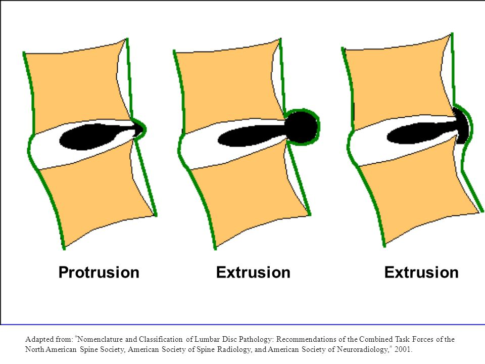 """Protrusion Extrusion Extrusion Adapted from: """" Nomenclature and Classification of Lumbar Disc Pathology: Recommendations of the Combined Task Forces o"""