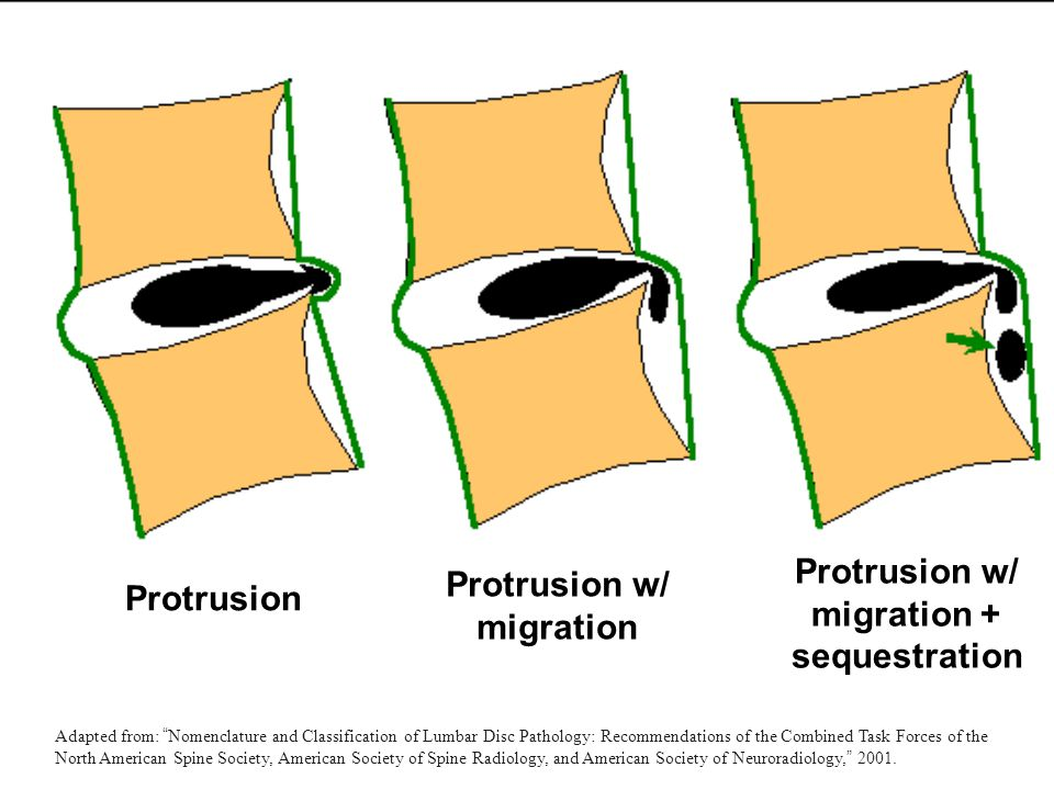 """Protrusion Protrusion w/ migration Protrusion w/ migration + sequestration Adapted from: """" Nomenclature and Classification of Lumbar Disc Pathology: R"""