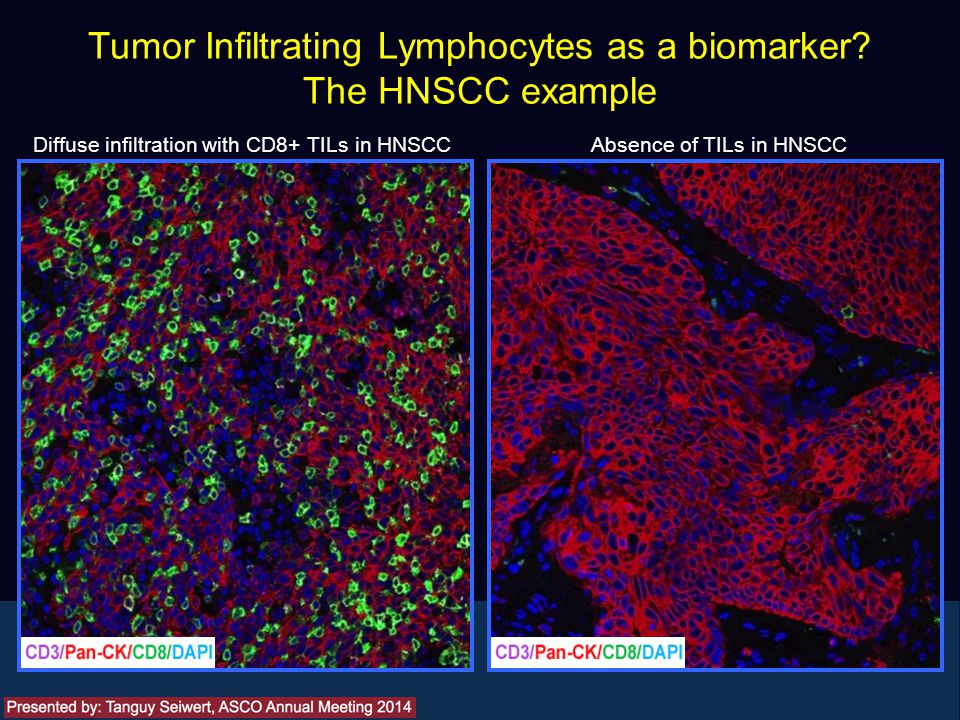Tumor Infiltrating Lymphocytes as a biomarker? The HNSCC example Presented by: Tanguy Seiwert Diffuse infiltration with CD8+ TILs in HNSCC Absence of