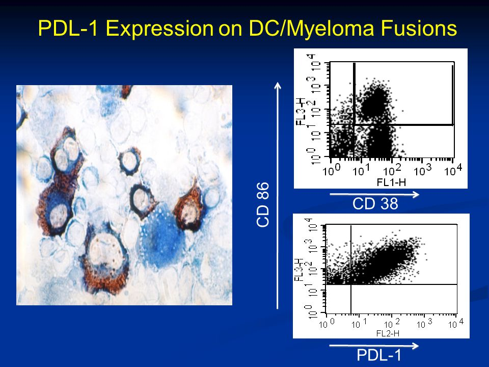 PDL-1 Expression on DC/Myeloma Fusions CD 86 CD 38 PDL-1