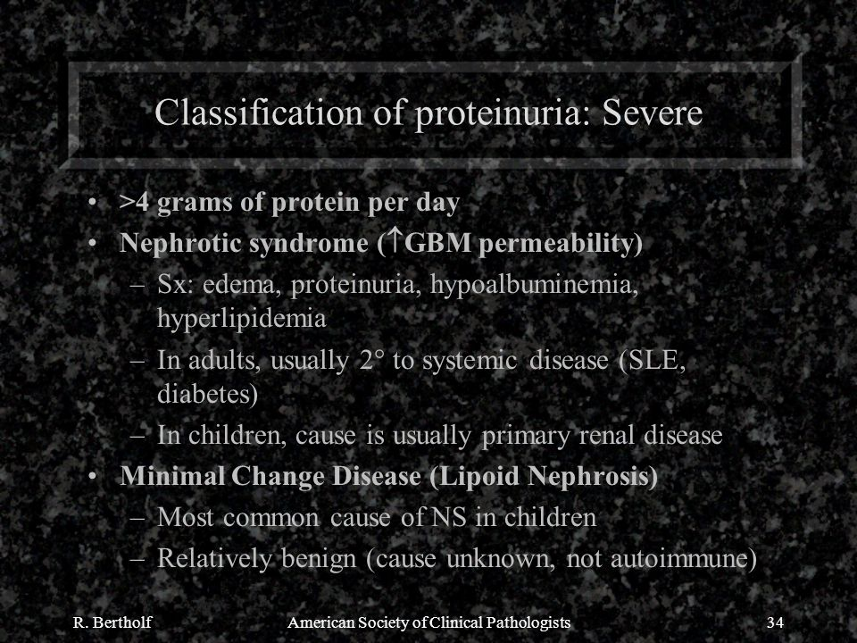 R. BertholfAmerican Society of Clinical Pathologists34 Classification of proteinuria: Severe >4 grams of protein per day Nephrotic syndrome (  GBM pe