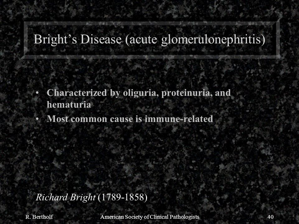 R. BertholfAmerican Society of Clinical Pathologists40 Bright's Disease (acute glomerulonephritis) Characterized by oliguria, proteinuria, and hematur