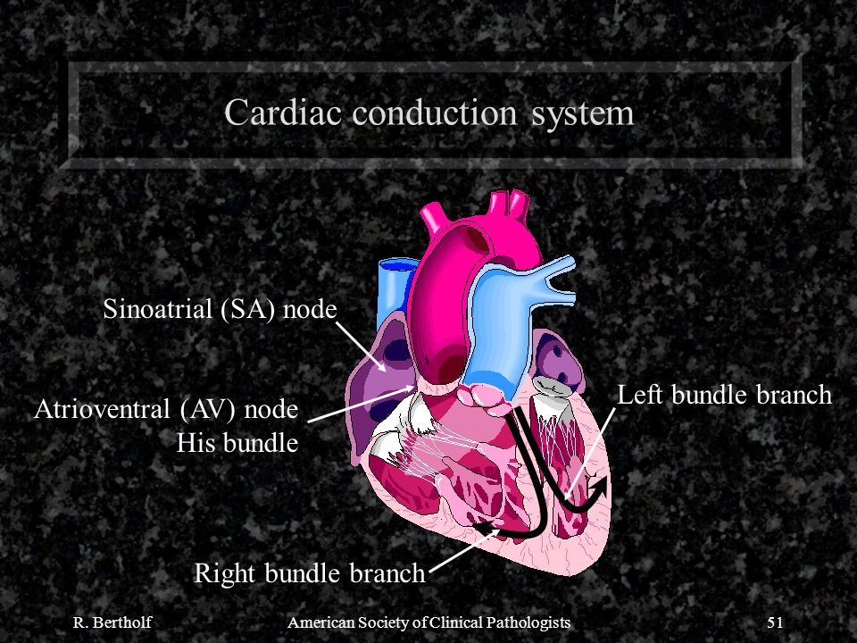 R. BertholfAmerican Society of Clinical Pathologists51 Cardiac conduction system Sinoatrial (SA) node Atrioventral (AV) node His bundle Right bundle b