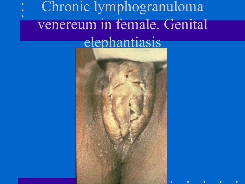 Chronic lymphogranuloma venereum in female. Genital elephantiasis