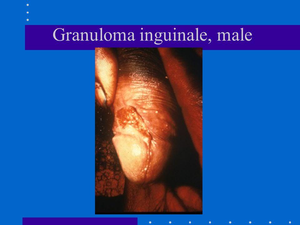 Granuloma inguinale, male
