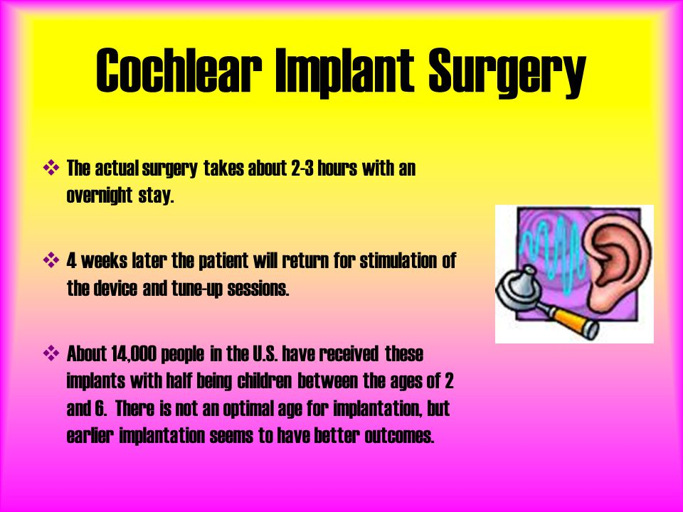 Cochlear Implant Surgery TT he actual surgery takes about 2-3 hours with an overnight stay.