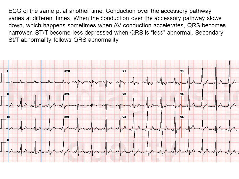ECG of the same pt at another time.