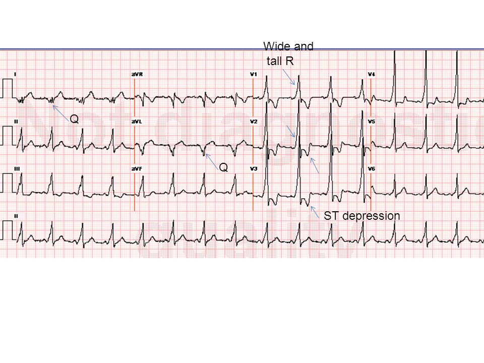 Looking for a tall/wide R wave in V1 and/or V2 should be a routine step in QRS analysis on every ECG