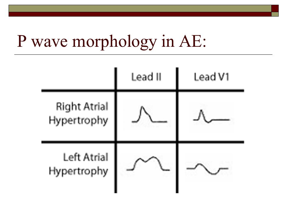 P wave morphology in AE: