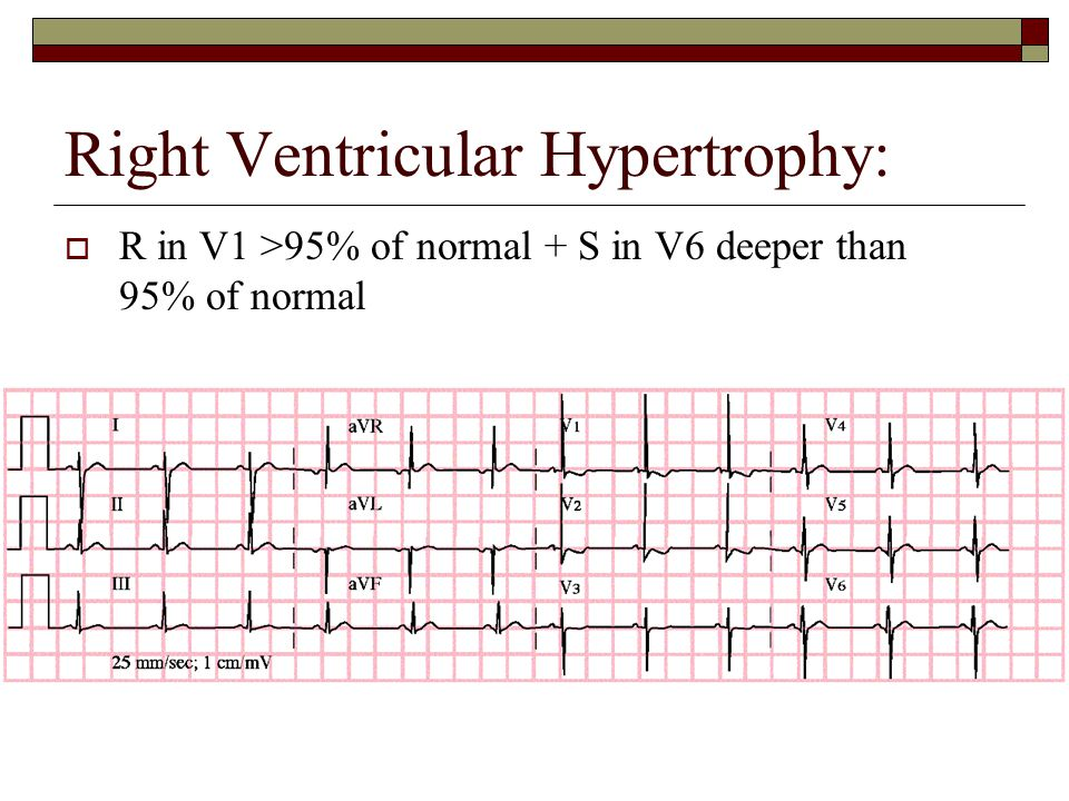 Right Ventricular Hypertrophy:  R in V1 >95% of normal + S in V6 deeper than 95% of normal