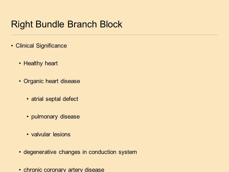 Right Bundle Branch Block Clinical Significance Healthy heart Organic heart disease atrial septal defect pulmonary disease valvular lesions degenerati