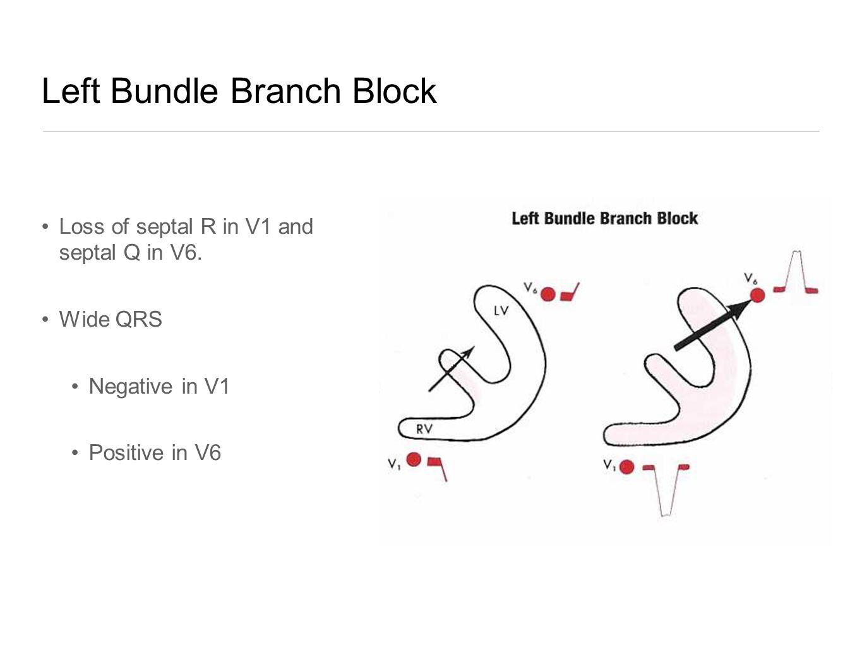 Left Bundle Branch Block Loss of septal R in V1 and septal Q in V6. Wide QRS Negative in V1 Positive in V6