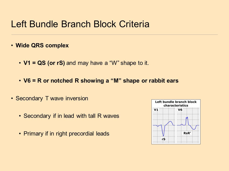 """Left Bundle Branch Block Criteria Wide QRS complex V1 = QS (or rS) and may have a """"W"""" shape to it. V6 = R or notched R showing a """"M"""" shape or rabbit e"""