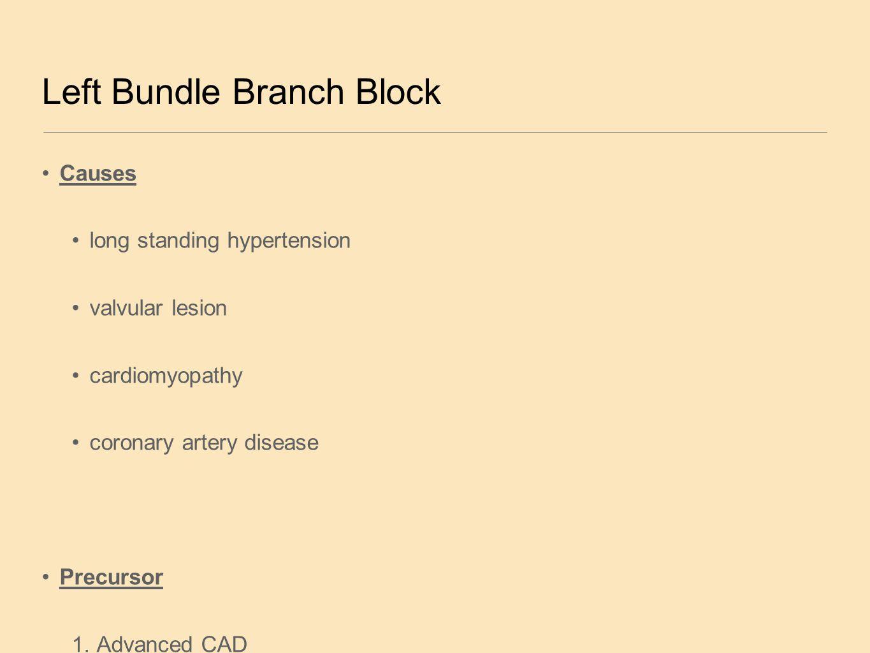 Left Bundle Branch Block Causes long standing hypertension valvular lesion cardiomyopathy coronary artery disease Precursor 1. Advanced CAD 2. Valvula