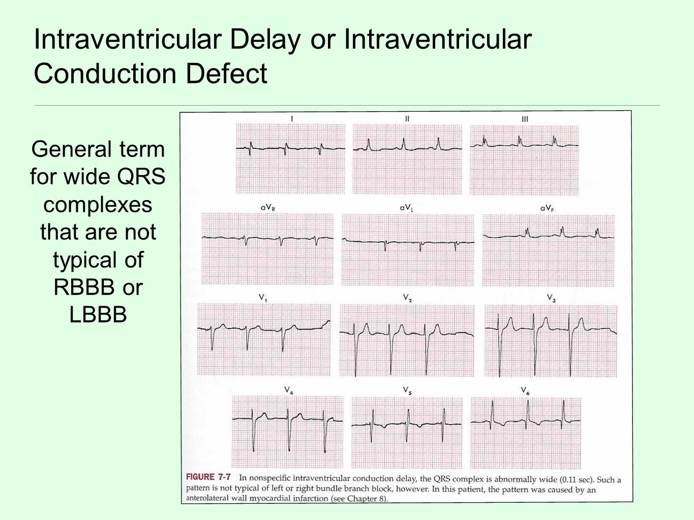 Intraventricular Delay or Intraventricular Conduction Defect General term for wide QRS complexes that are not typical of RBBB or LBBB