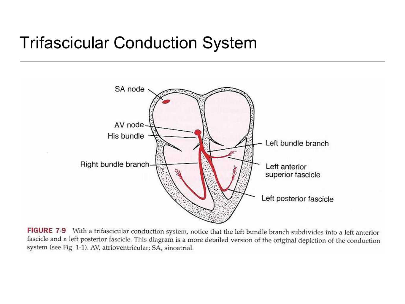 Trifascicular Conduction System