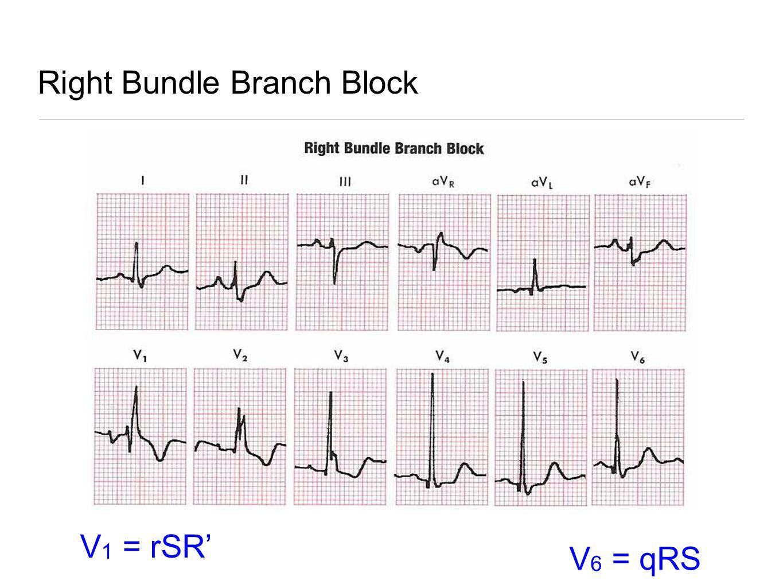 Right Bundle Branch Block V 1 = rSR' V 6 = qRS