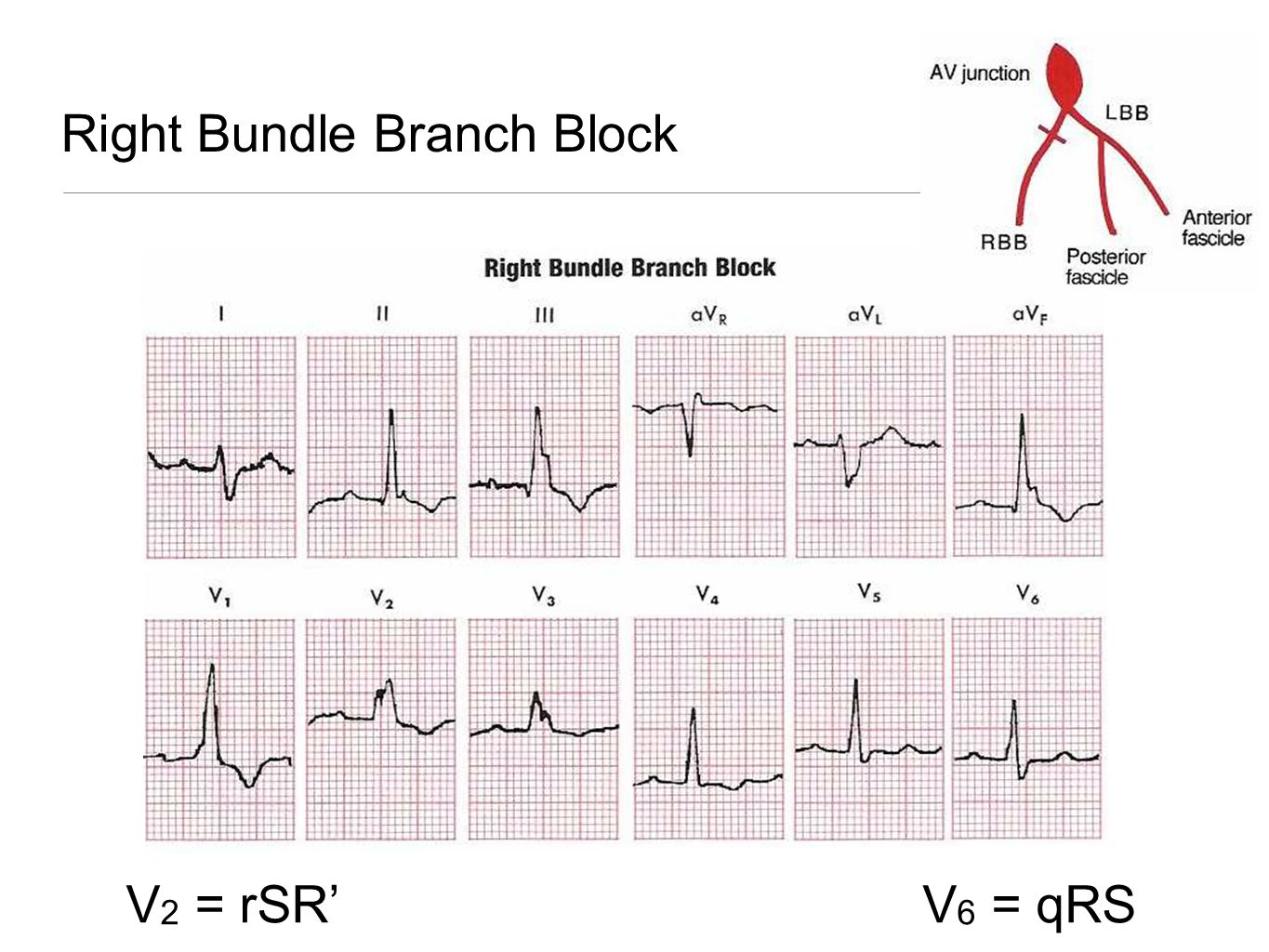 Hypertrophy In The Presence of Bundle Branch Block RVH and RBBB RAD is typically seen; also look for RAE and its peaked P waves.