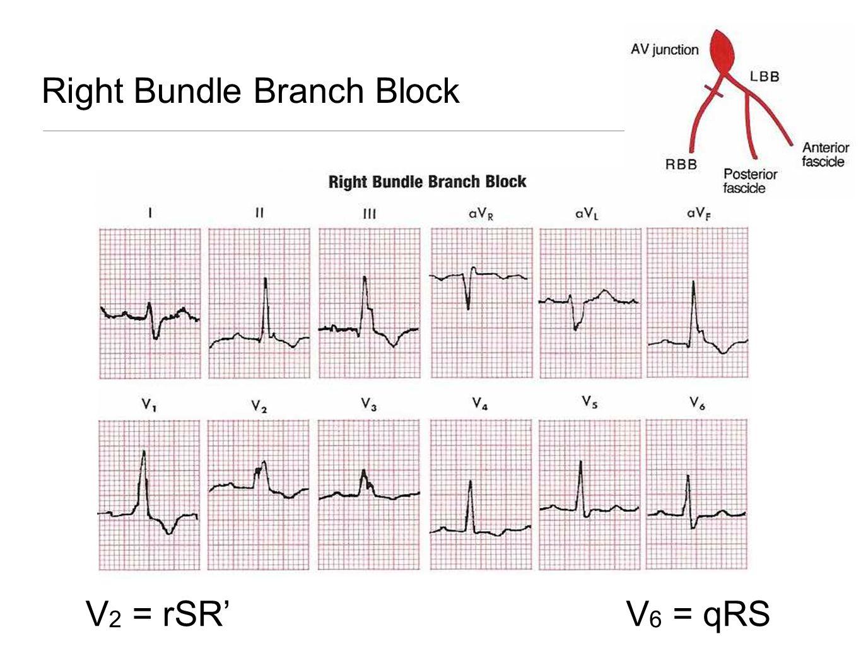 Right Bundle Branch Block V 2 = rSR'V 6 = qRS