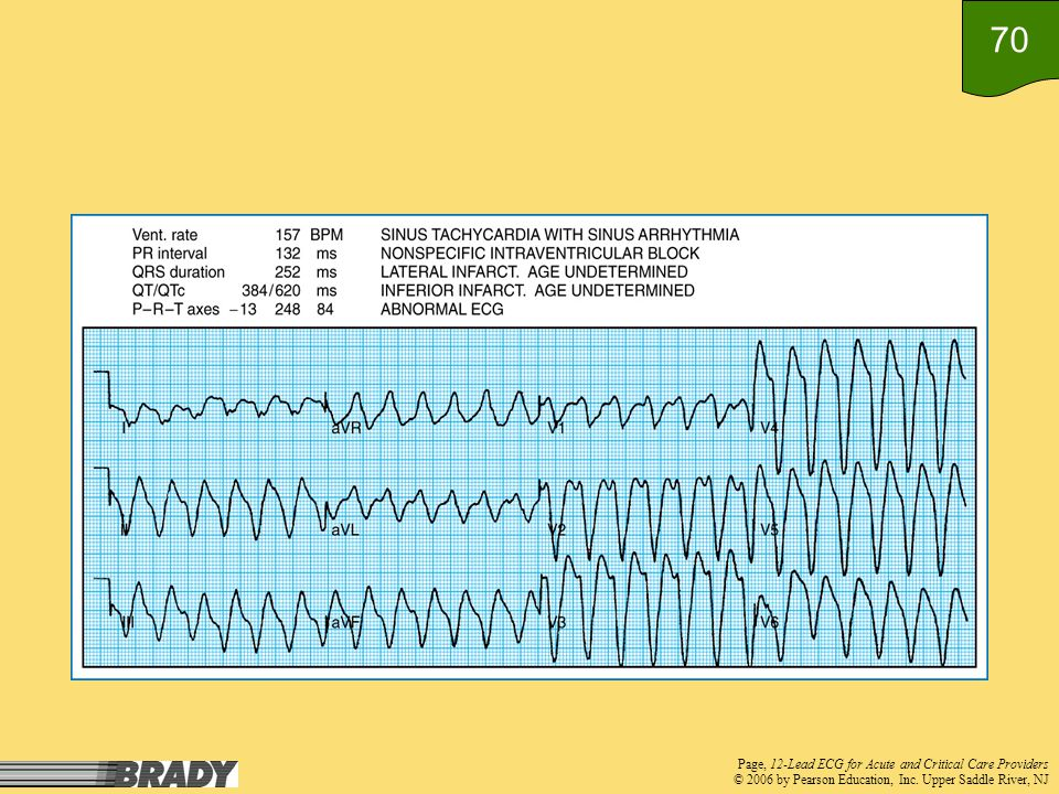 Page, 12-Lead ECG for Acute and Critical Care Providers © 2006 by Pearson Education, Inc.